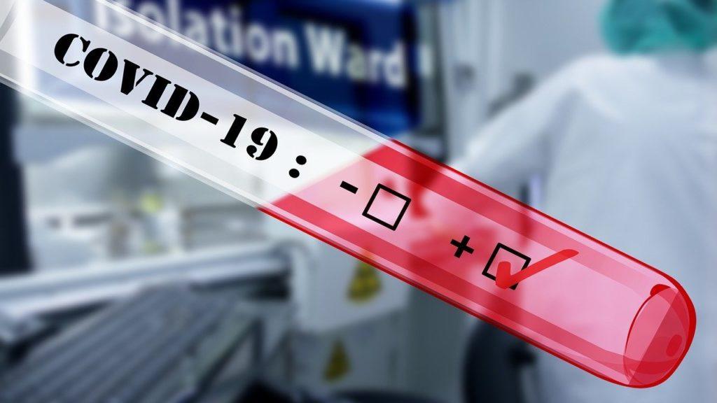 Gdzie zrobić test na koronawirusa? 1